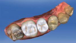 Odontoiatria Digitale