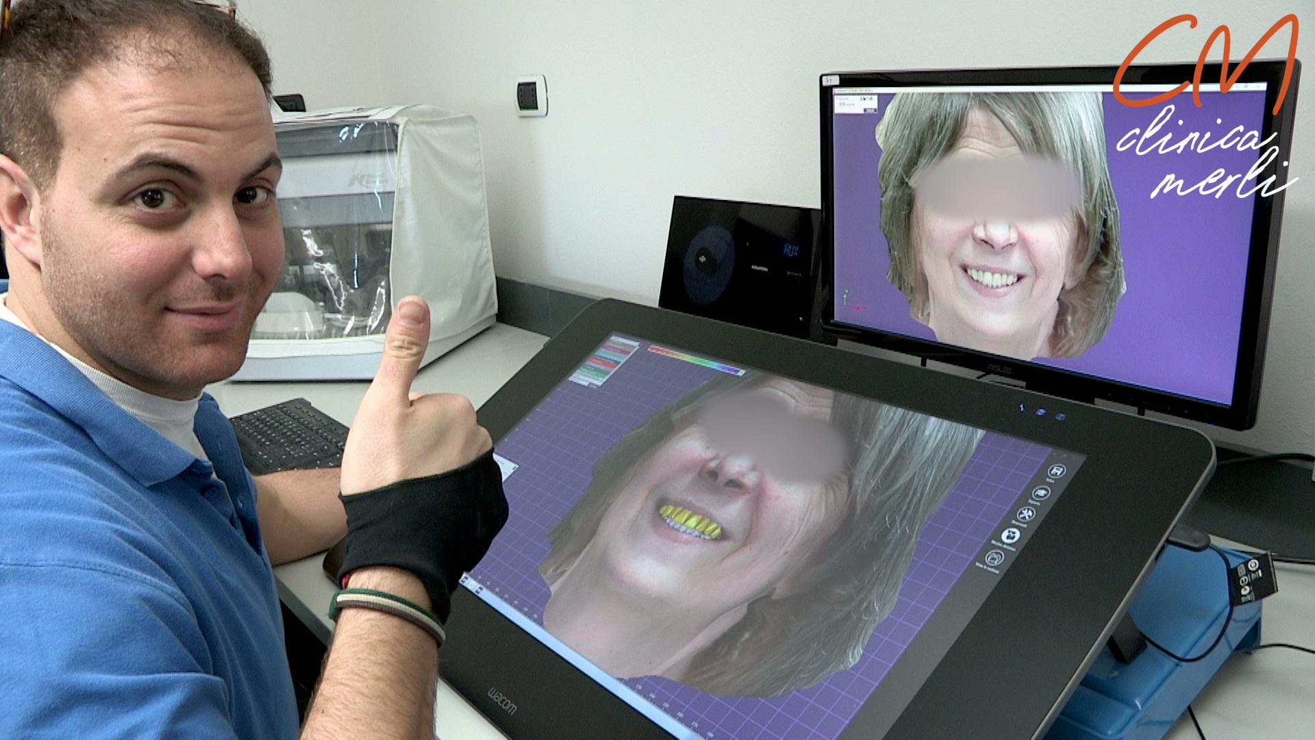 CAD DESIGN con scansione 3D FACCIALE